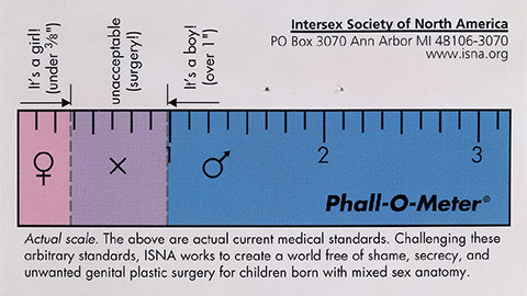 Thumbnail for Intersex treatment: controversy and debate